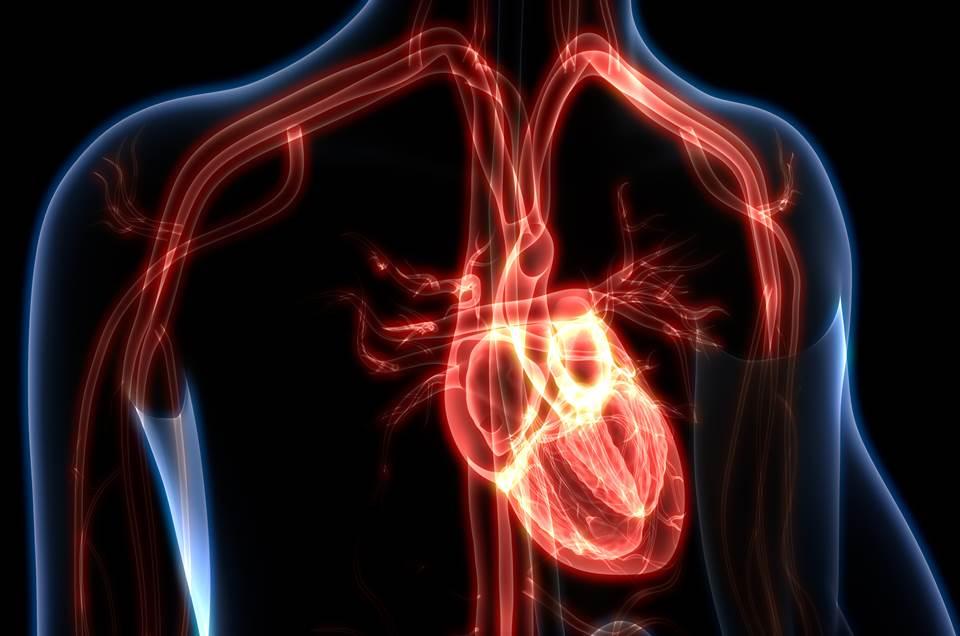miocardite e infarto